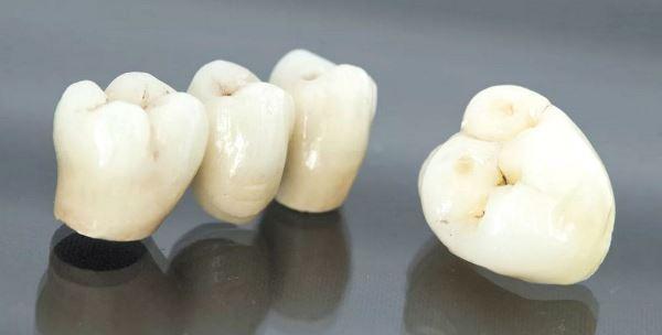 Зубная мифология: коронки